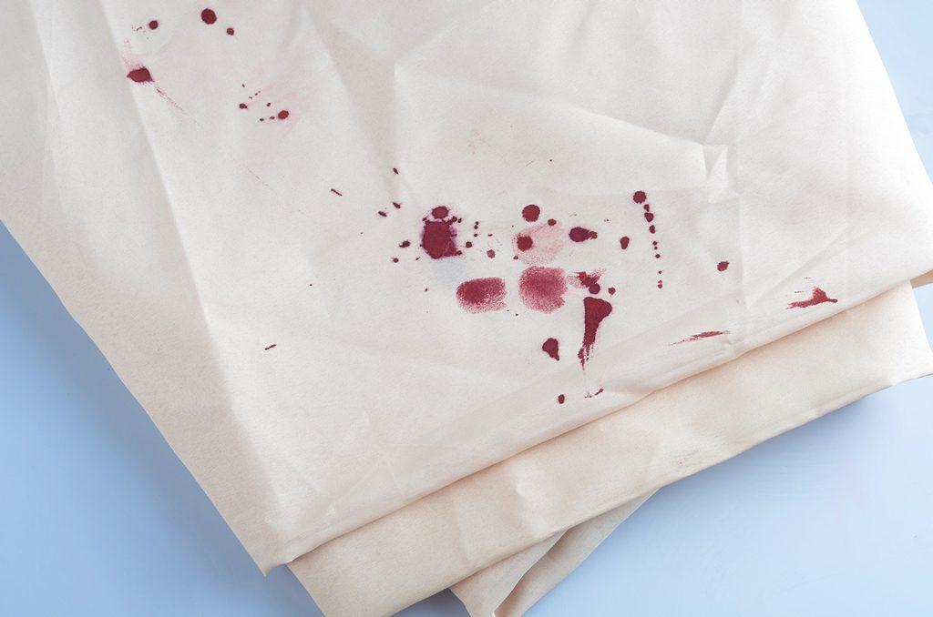 Пятна крови на белом